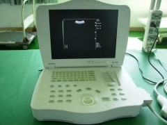 Laptop Fully Digital Ultrasound Scanner