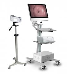 Digital Optical Colposcope