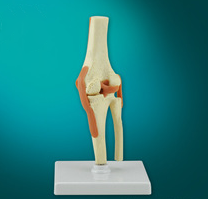 The model of knee joint and ligament attach with sagittal section
